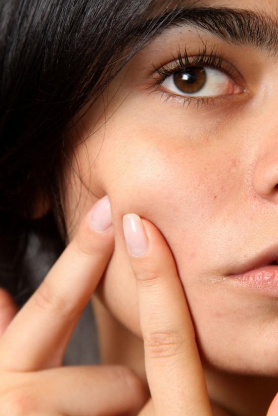 Uroda 40 plus - Poretinoidowe zapalenie skóry