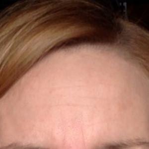Złuszczanie a przebarwienia - Uroda 40 plus
