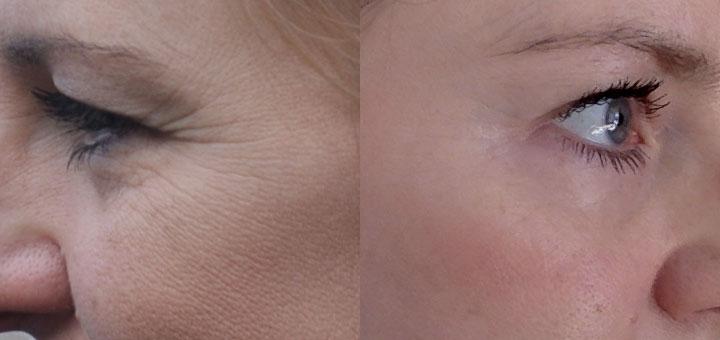 Efekty stosowania retinoidów - po 3 latach